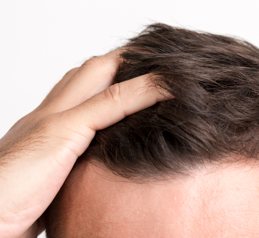 Dana Point hair transplant & hair restoration services